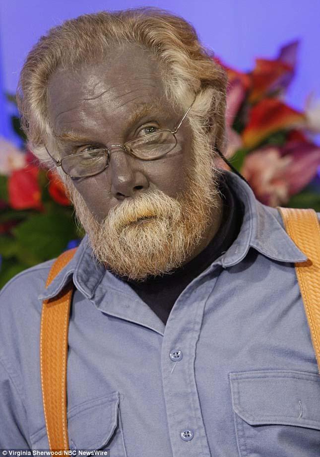 Paul Karason, a kék színű férfi