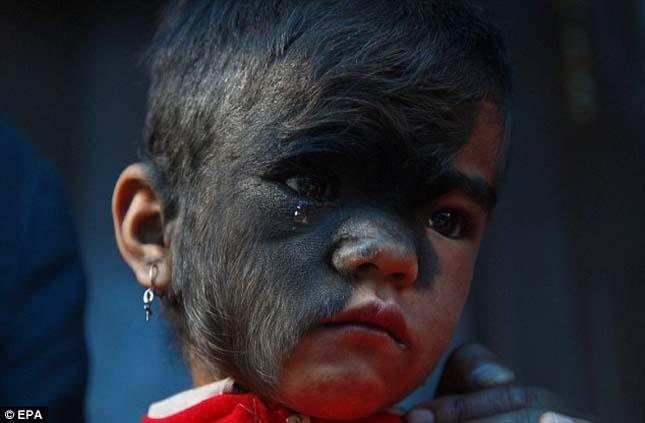 Szőrös arcú lány, Nepál
