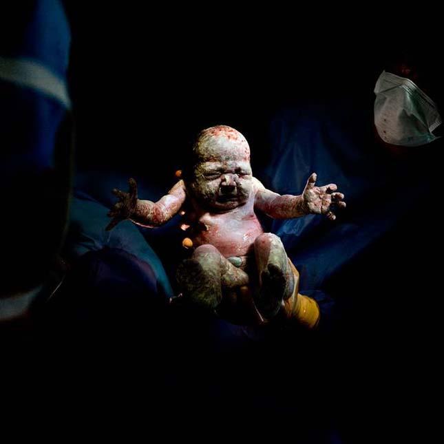 A születés első pillanatai