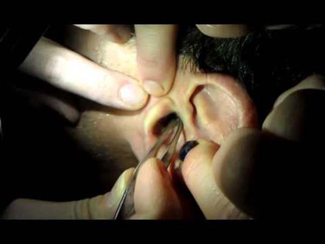 Tücsköt távolítottak el a füléből