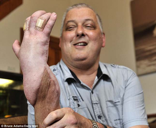 Kéz transzplantáció