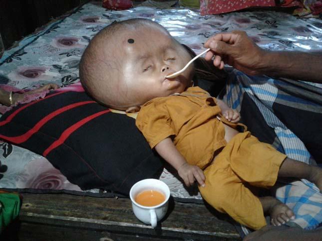 Vízfejűségben szenved egy bangladesi kisfiú