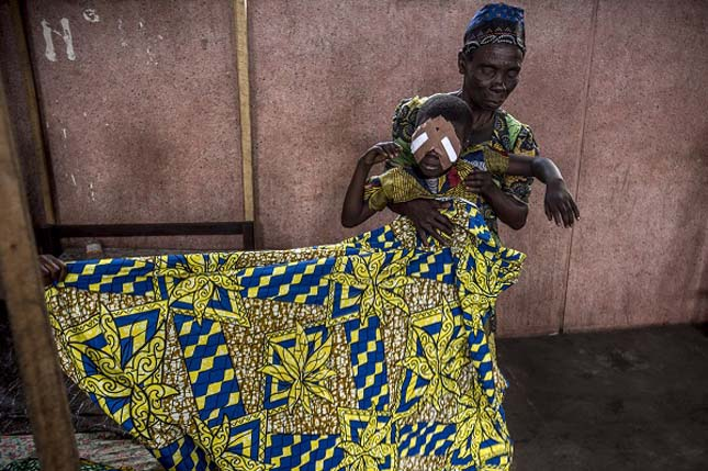 Egy magyar szemorvos Kongóban