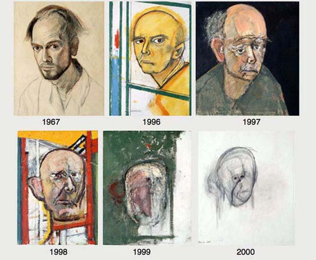 Alzheimer betegség